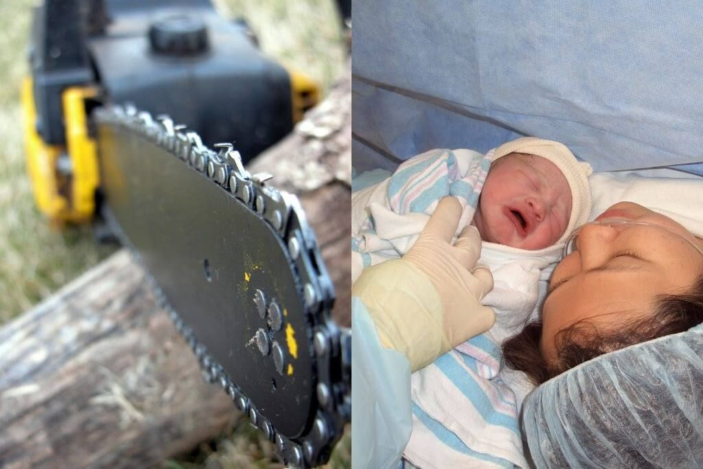 Why Were Chainsaws Invented? - Everything About Chainsaw For Childbirth